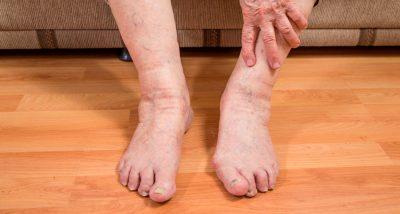 SBOT, artrite gotosa, ortopedia