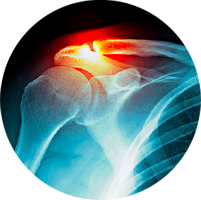 Trauma Ortopédico