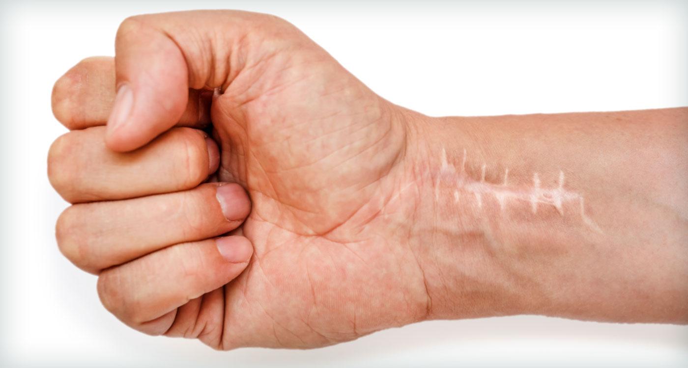 SBOT, trauma no punho, traumatologia